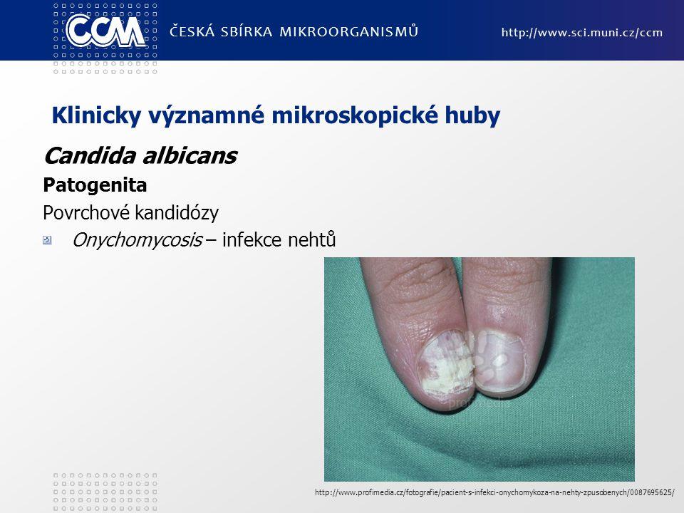 Klinicky významné mikroskopické huby Candida albicans Patogenita Povrchové kandidózy Onychomycosis – infekce nehtů ČESKÁ SBÍRKA MIKROORGANISMŮ http://www.sci.muni.cz/ccm http://www.profimedia.cz/fotografie/pacient-s-infekci-onychomykoza-na-nehty-zpusobenych/0087695625/
