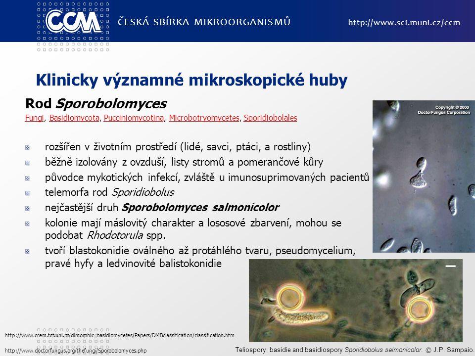 Klinicky významné mikroskopické huby Rod Sporobolomyces FungiFungi, Basidiomycota, Pucciniomycotina, Microbotryomycetes, SporidiobolalesBasidiomycotaP