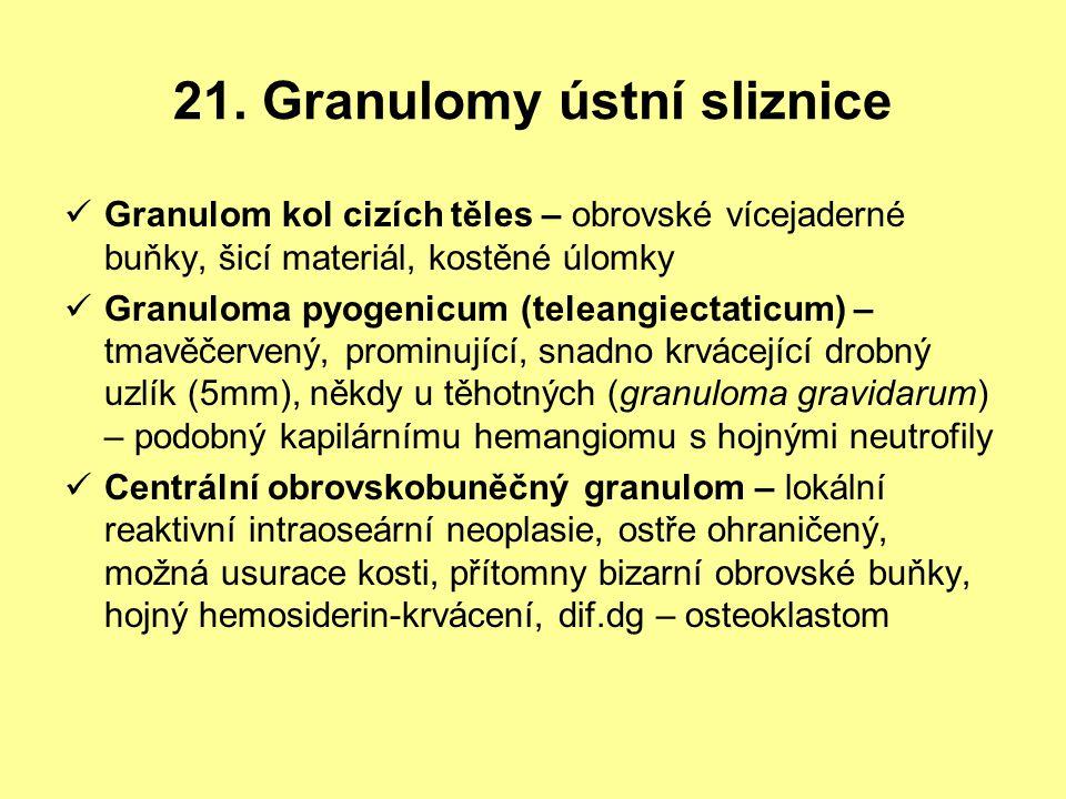 21. Granulomy ústní sliznice Granulom kol cizích těles – obrovské vícejaderné buňky, šicí materiál, kostěné úlomky Granuloma pyogenicum (teleangiectat