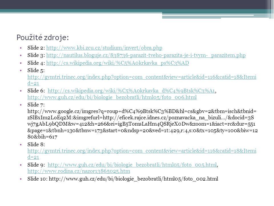 Použité zdroje: Slide 2: http://www.kbi.zcu.cz/studium/invert/obra.phphttp://www.kbi.zcu.cz/studium/invert/obra.php Slide 3: http://nautilus.bloguje.c