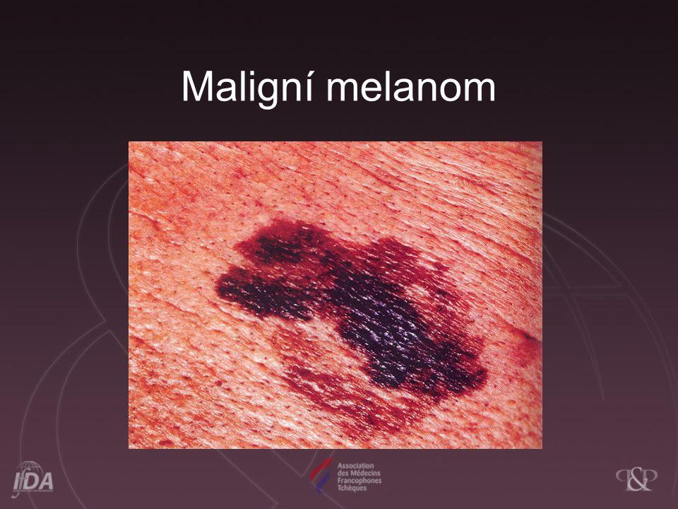 Maligní melanom