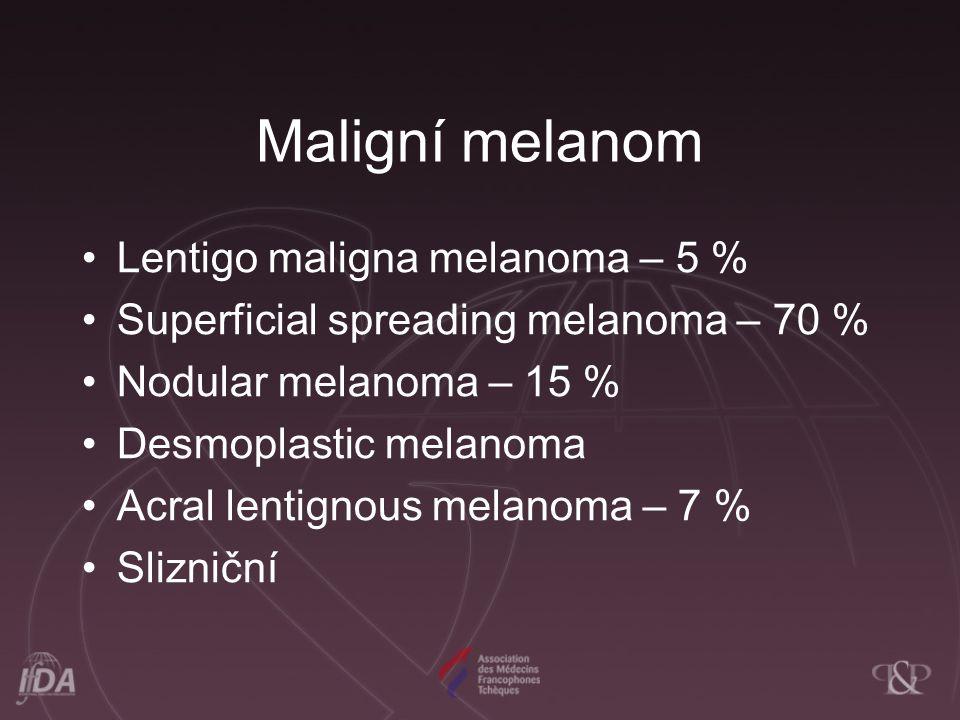 Lentigo maligna melanoma – 5 % Superficial spreading melanoma – 70 % Nodular melanoma – 15 % Desmoplastic melanoma Acral lentignous melanoma – 7 % Sli