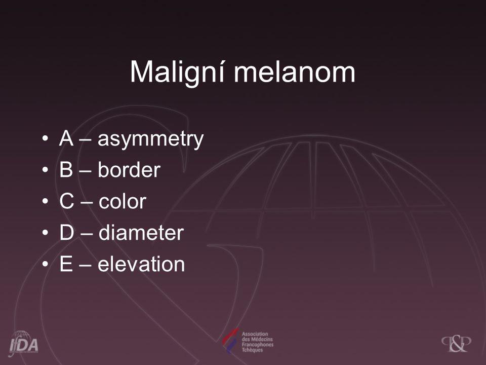 Maligní melanom A – asymmetry B – border C – color D – diameter E – elevation