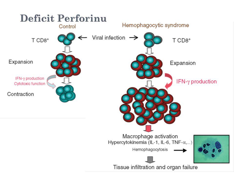 Viral infection Deficit Perforinu