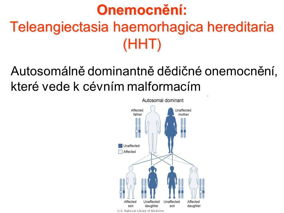Onemocnění: Teleangiectasia haemorhagica hereditaria (HHT) Autosomálně dominantně dědičné onemocnění, které vede k cévním malformacím