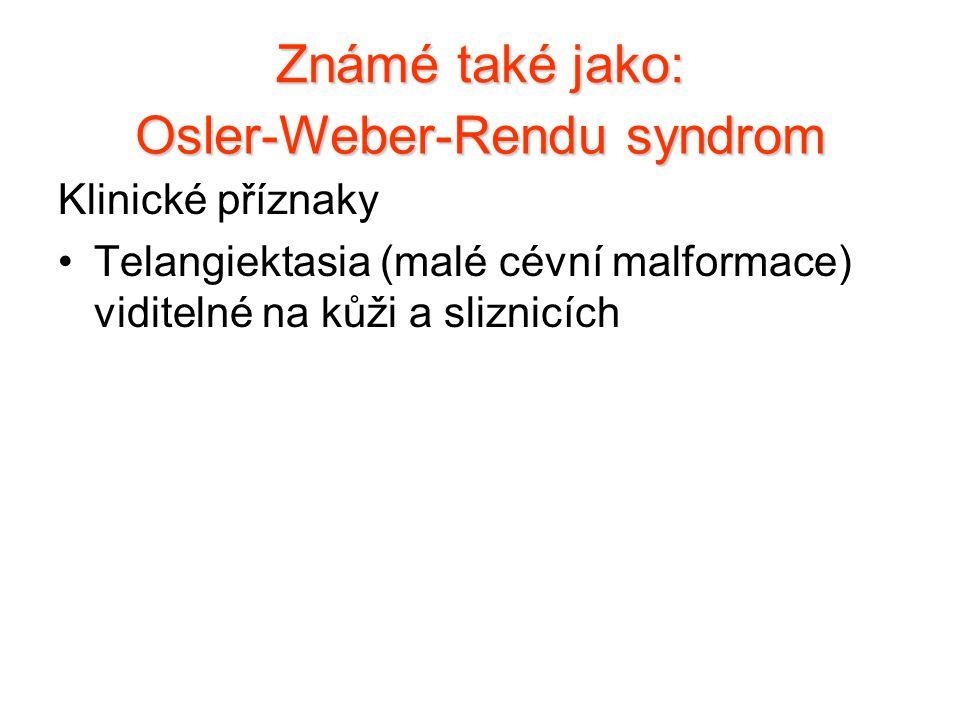 Klinické příznaky Telangiektasia (malé cévní malformace) viditelné na kůži a sliznicích Známé také jako: Osler-Weber-Rendu syndrom