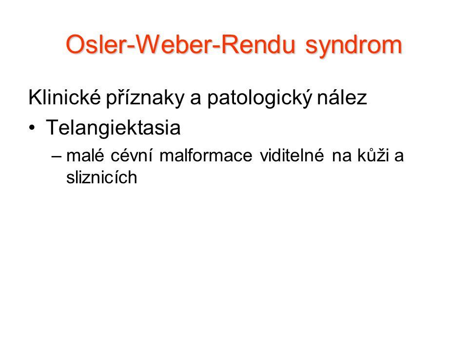 Klinické příznaky a patologický nález Telangiektasia –malé cévní malformace viditelné na kůži a sliznicích Osler-Weber-Rendu syndrom