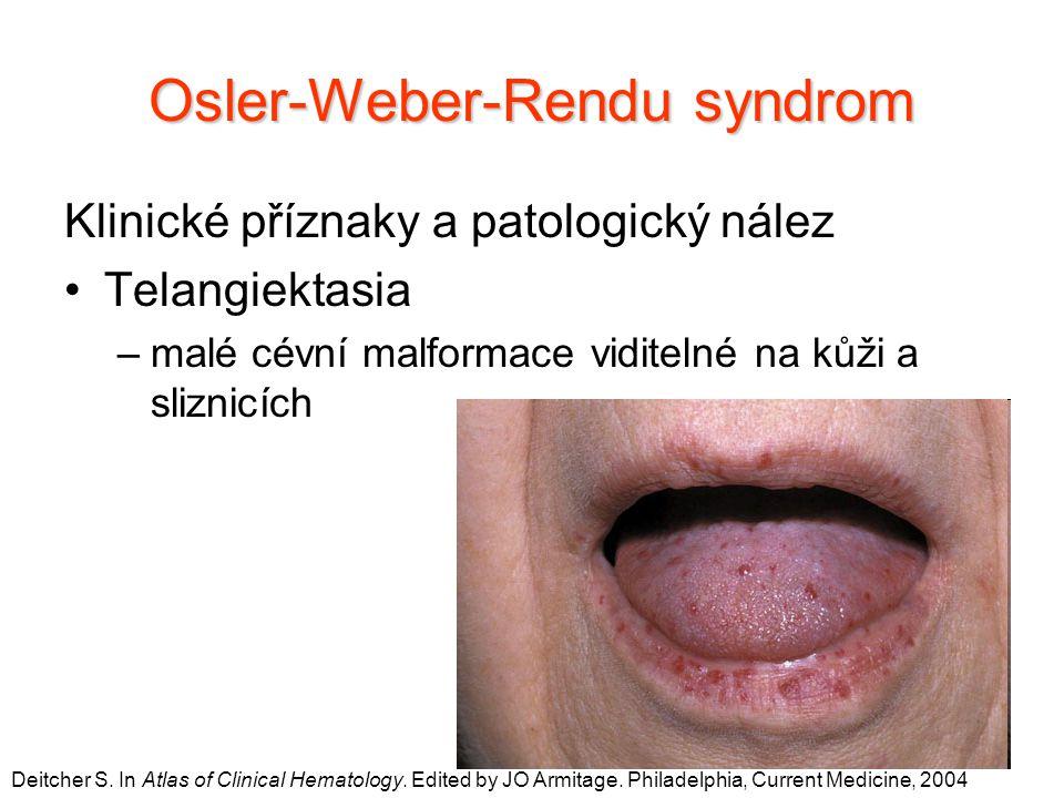 Klinické příznaky a patologický nález Telangiektasia –malé cévní malformace viditelné na kůži a sliznicích Osler-Weber-Rendu syndrom Deitcher S. In At