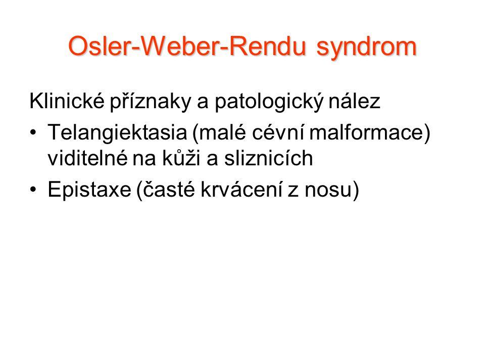 Klinické příznaky a patologický nález Telangiektasia (malé cévní malformace) viditelné na kůži a sliznicích Epistaxe (časté krvácení z nosu) Osler-Web