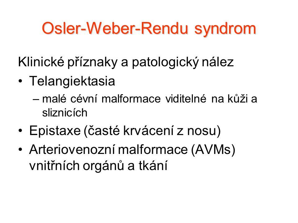 Klinické příznaky a patologický nález Telangiektasia –malé cévní malformace viditelné na kůži a sliznicích Epistaxe (časté krvácení z nosu) Arterioven