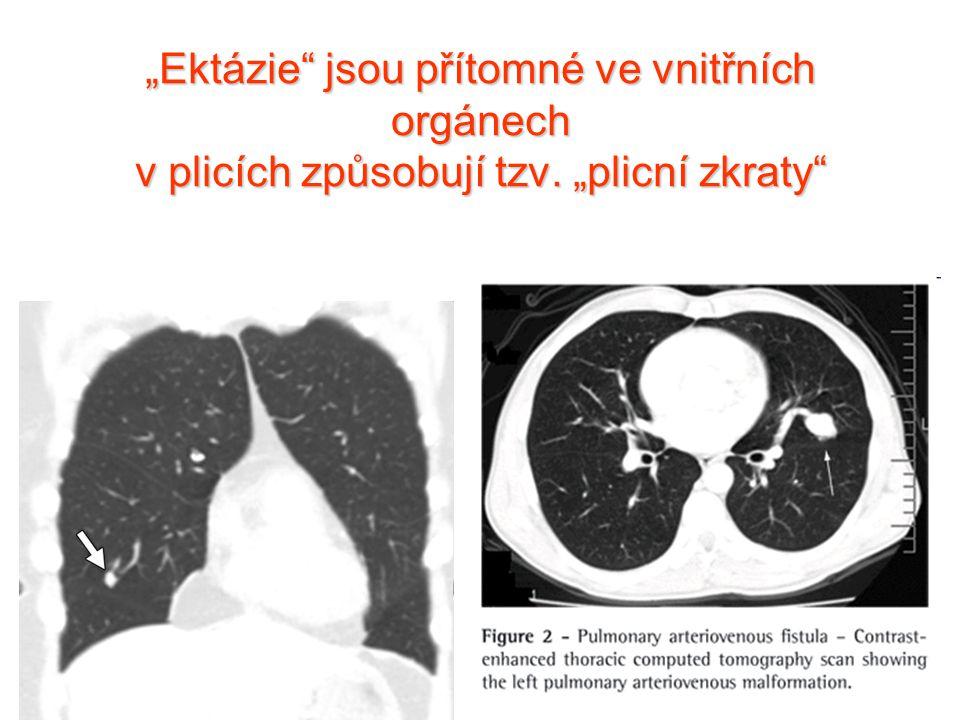 """""""Ektázie"""" jsou přítomné ve vnitřních orgánech v plicích způsobují tzv. """"plicní zkraty"""""""