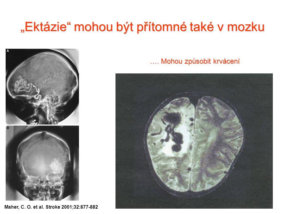 """""""Ektázie"""" mohou být přítomné také v mozku Maher, C. O. et al. Stroke 2001;32:877-882 …. Mohou způsobit krvácení"""