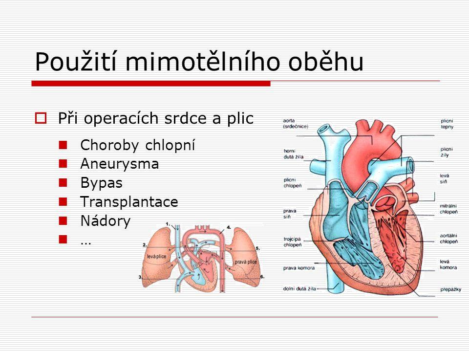 Použití mimotělního oběhu  Při operacích srdce a plic Choroby chlopní Aneurysma Bypas Transplantace Nádory …