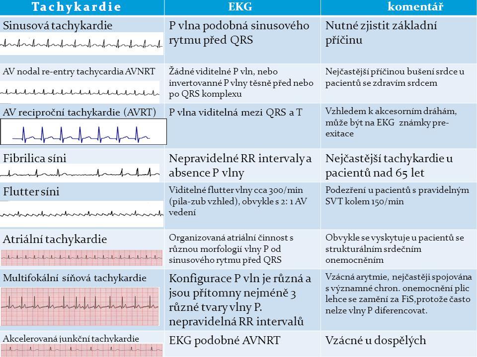 EKG komentář Sinusová tachykardieP vlna podobná sinusového rytmu před QRS Nutné zjistit základní příčinu AV nodal re-entry tachycardia AVNRTŽádné vidi