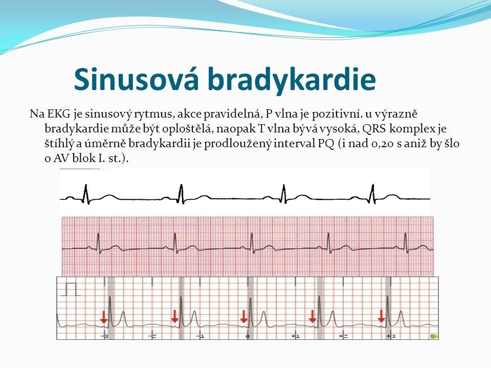 Sinusová bradykardie Na EKG je sinusový rytmus, akce pravidelná, P vlna je pozitivní. u výrazně bradykardie může být oploštělá, naopak T vlna bývá vys