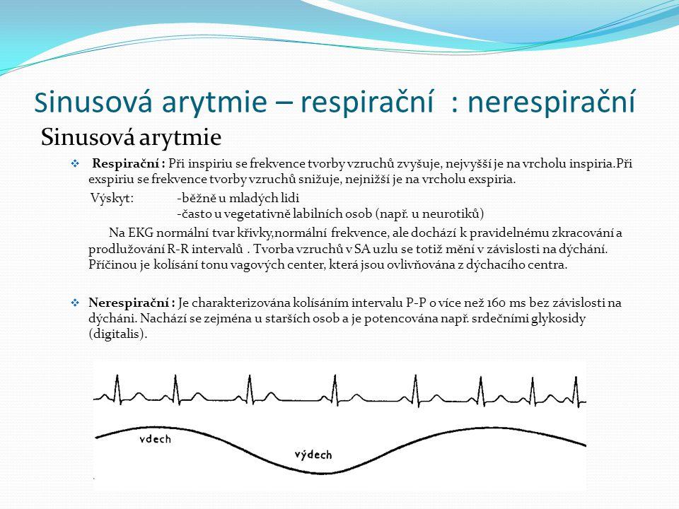 S inusová arytmie – respirační : nerespirační Sinusová arytmie  Respirační : Při inspiriu se frekvence tvorby vzruchů zvyšuje, nejvyšší je na vrcholu
