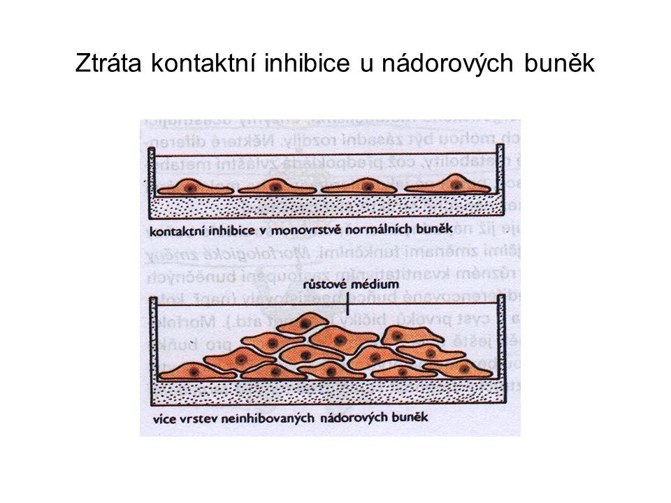 Ztráta kontaktní inhibice u nádorových buněk