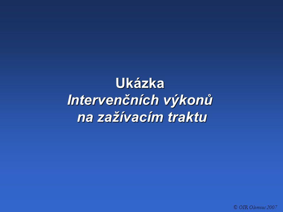 Ukázka Intervenčních výkonů na zažívacím traktu © OIR Olomouc 2007