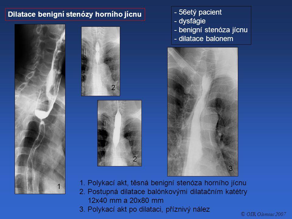 Dilatace benigní stenózy horního jícnu - 56etý pacient - dysfágie - benigní stenóza jícnu - dilatace balonem 1. Polykací akt, těsná benigní stenóza ho