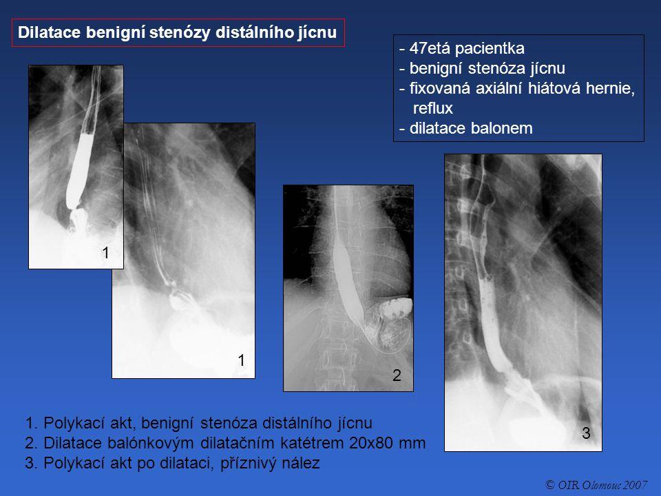 Dilatace benigní stenózy distálního jícnu - 47etá pacientka - benigní stenóza jícnu - fixovaná axiální hiátová hernie, reflux - dilatace balonem 1. Po