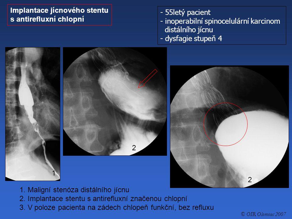 - 55letý pacient - inoperabilní spinocelulární karcinom distálního jícnu - dysfagie stupeň 4 Implantace jícnového stentu s antirefluxní chlopní 1. Mal