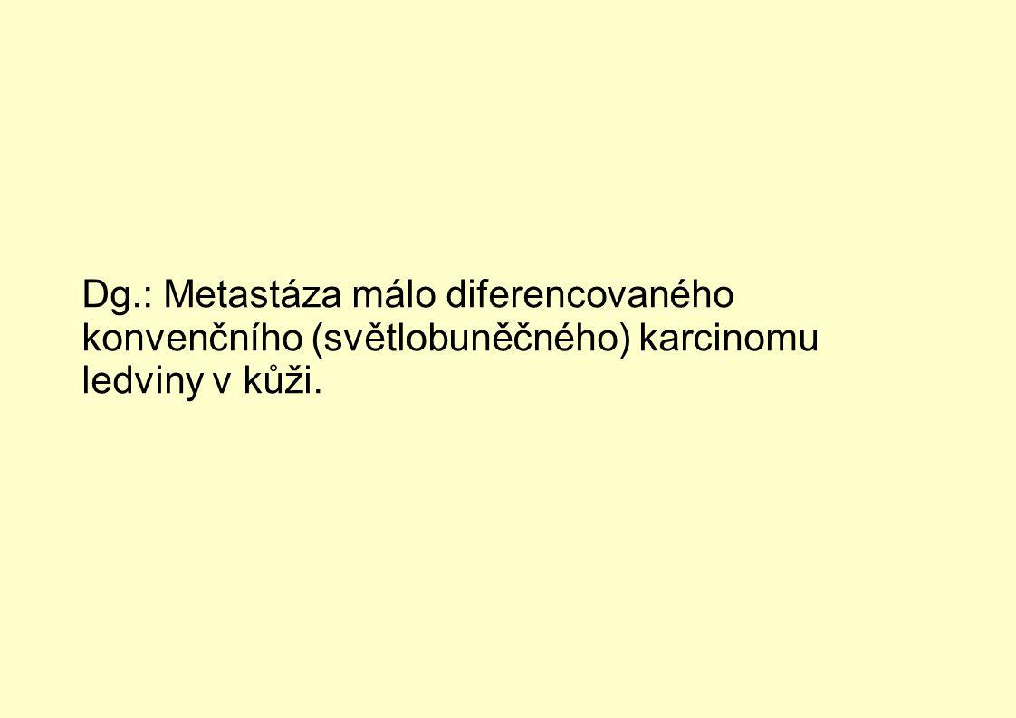 Dg.: Metastáza málo diferencovaného konvenčního (světlobuněčného) karcinomu ledviny v kůži.