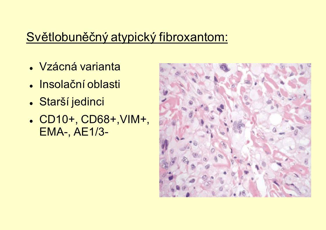 Světlobuněčný atypický fibroxantom: Vzácná varianta Insolační oblasti Starší jedinci CD10+, CD68+,VIM+, EMA-, AE1/3-
