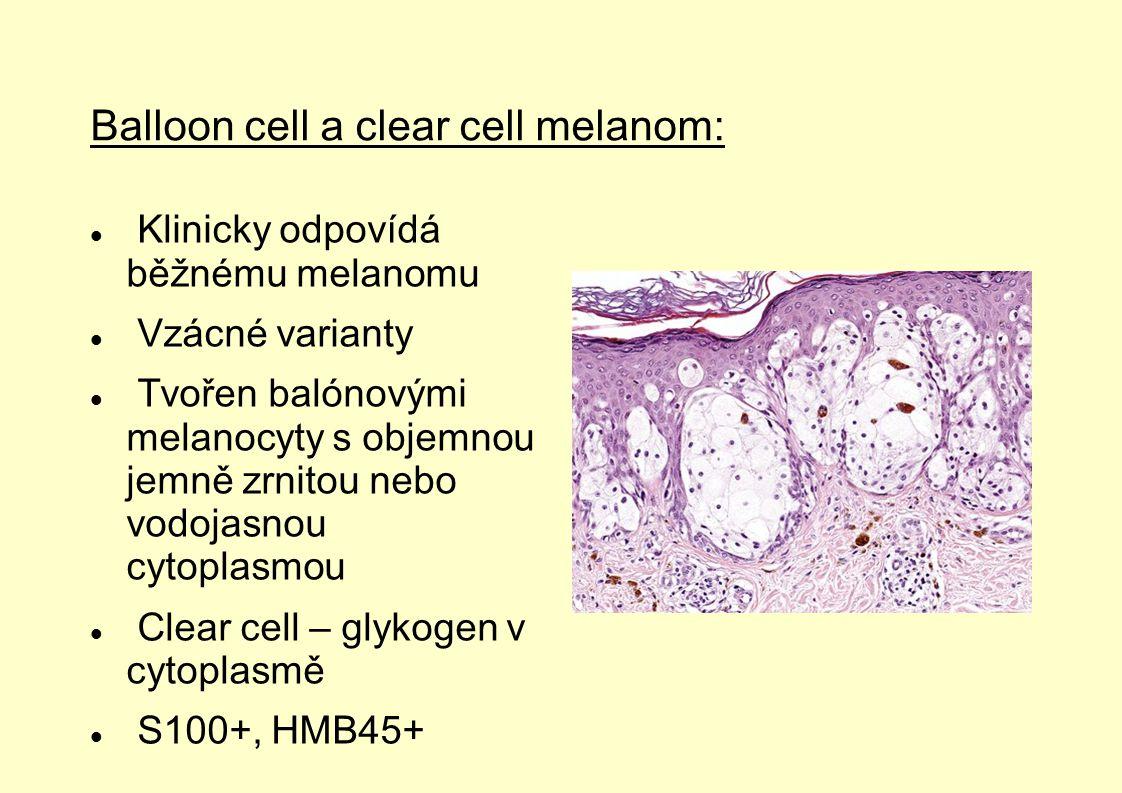 Balloon cell a clear cell melanom: Klinicky odpovídá běžnému melanomu Vzácné varianty Tvořen balónovými melanocyty s objemnou jemně zrnitou nebo vodoj