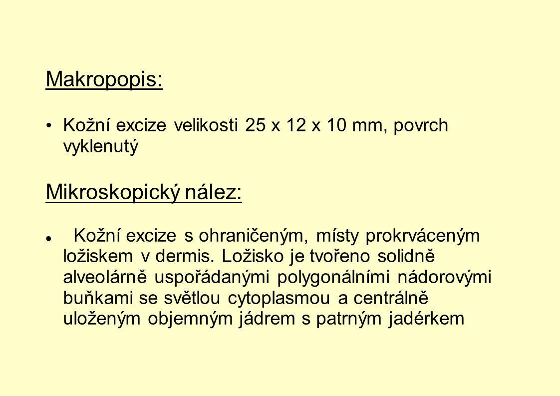 Makropopis: Kožní excize velikosti 25 x 12 x 10 mm, povrch vyklenutý Mikroskopický nález: Kožní excize s ohraničeným, místy prokrváceným ložiskem v de