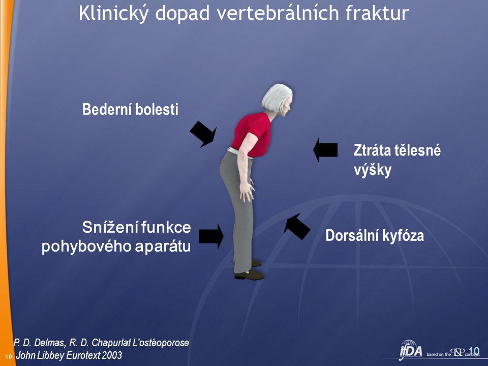 10 Bederní bolesti Ztráta tělesné výšky Dorsální kyfóza Snížení funkce pohybového aparátu P.