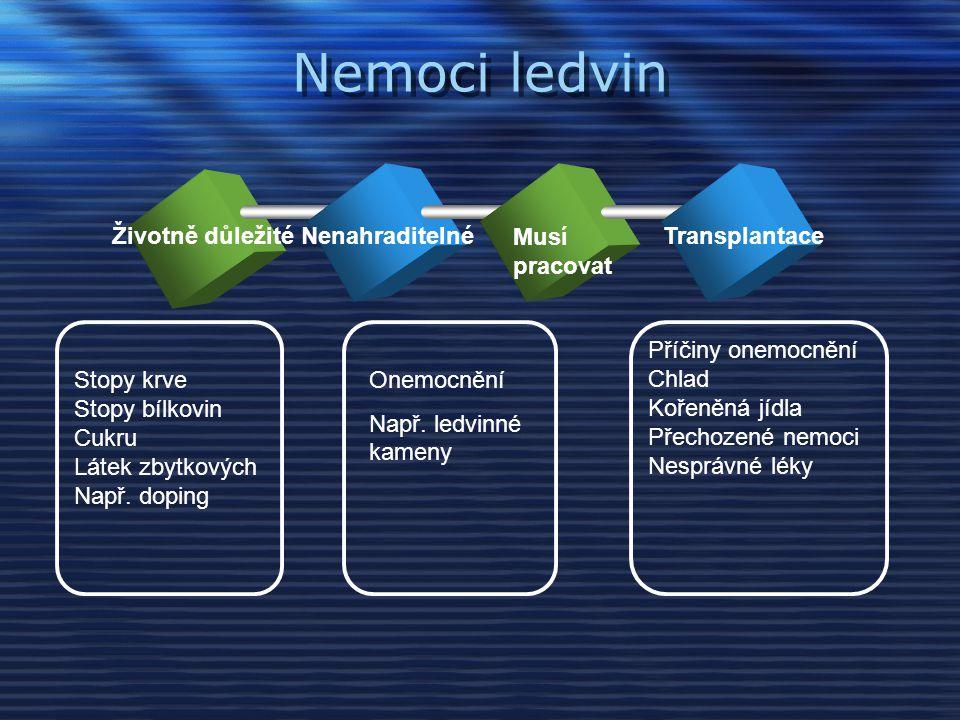 Nemoci ledvin Životně důležitéNenahraditelné Musí pracovat Transplantace Stopy krve Stopy bílkovin Cukru Látek zbytkových Např.