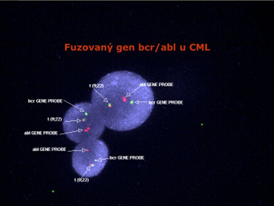 Fuzovaný gen bcr/abl u CML