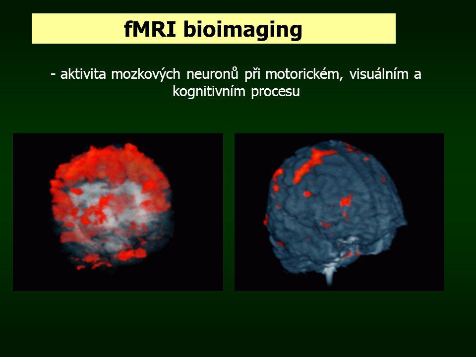 fMRI bioimaging - aktivita mozkových neuronů při motorickém, visuálním a kognitivním procesu