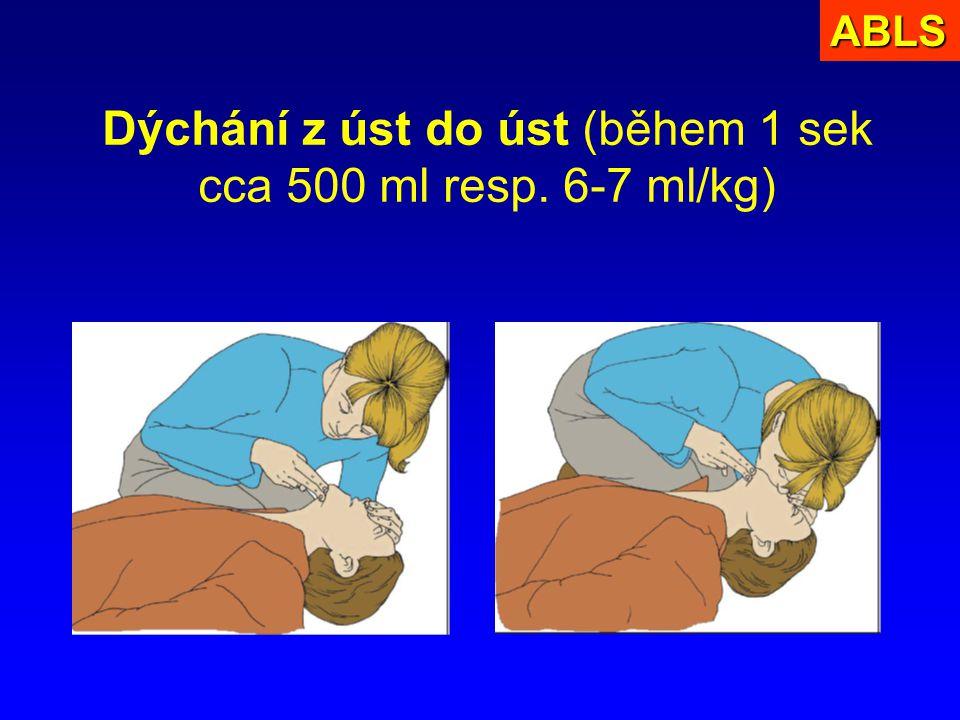 Dýchání z úst do úst (během 1 sek cca 500 ml resp. 6-7 ml/kg)ABLS