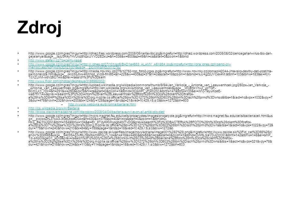 Zdroj http://www.google.cz/imgres?imgurl=http://dhiez.files.wordpress.com/2008/05/rantai-tbc.jpg&imgrefurl=http://dhiez.wordpress.com/2008/05/02/pence