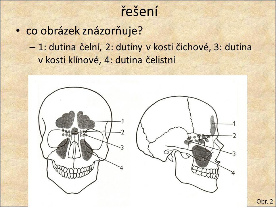 řešení co obrázek znázorňuje? – 1: dutina čelní, 2: dutiny v kosti čichové, 3: dutina v kosti klínové, 4: dutina čelistní Obr. 2