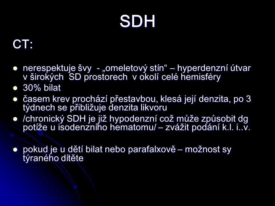 """SDH CT: nerespektuje švy - """"omeletový stín – hyperdenzní útvar v širokých SD prostorech v okolí celé hemisféry nerespektuje švy - """"omeletový stín – hyperdenzní útvar v širokých SD prostorech v okolí celé hemisféry 30% bilat 30% bilat časem krev prochází přestavbou, klesá její denzita, po 3 týdnech se přibližuje denzita likvoru časem krev prochází přestavbou, klesá její denzita, po 3 týdnech se přibližuje denzita likvoru /chronický SDH je již hypodenzní což může způsobit dg potíže u isodenzního hematomu/ – zvážit podání k.l."""