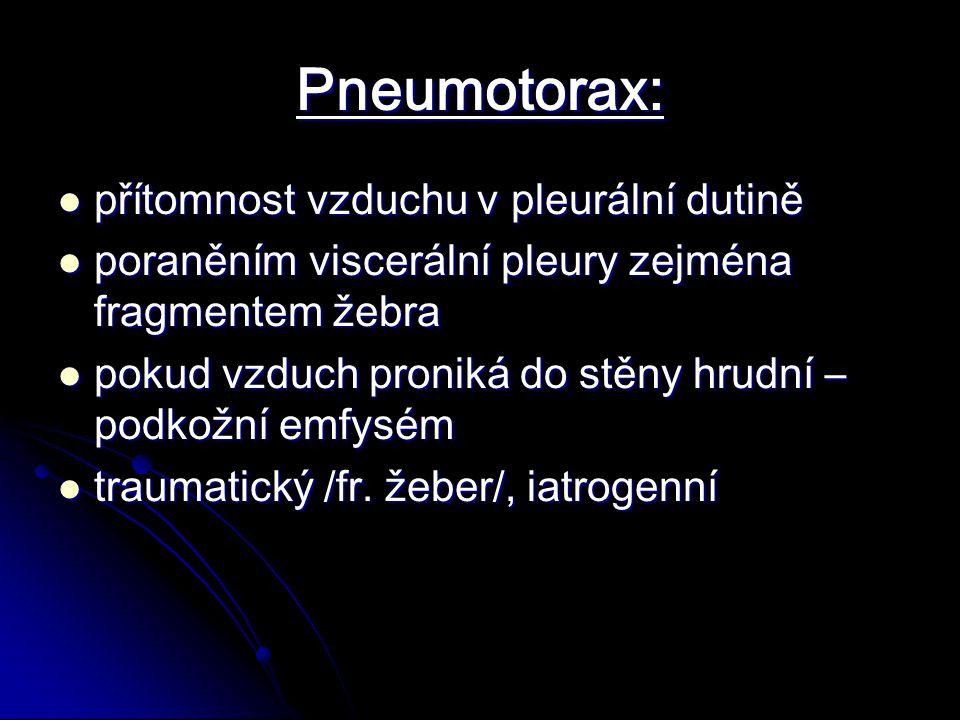 Pneumotorax: přítomnost vzduchu v pleurální dutině přítomnost vzduchu v pleurální dutině poraněním viscerální pleury zejména fragmentem žebra poraněním viscerální pleury zejména fragmentem žebra pokud vzduch proniká do stěny hrudní – podkožní emfysém pokud vzduch proniká do stěny hrudní – podkožní emfysém traumatický /fr.