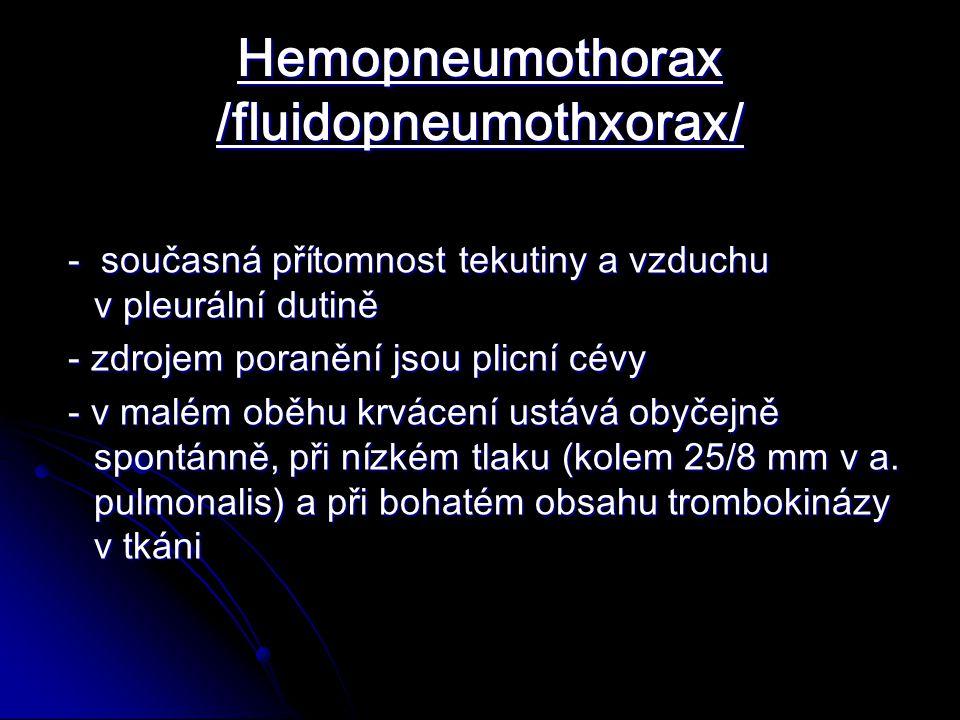 Hemopneumothorax /fluidopneumothxorax/ - současná přítomnost tekutiny a vzduchu v pleurální dutině - současná přítomnost tekutiny a vzduchu v pleurální dutině - zdrojem poranění jsou plicní cévy - zdrojem poranění jsou plicní cévy - v malém oběhu krvácení ustává obyčejně spontánně, při nízkém tlaku (kolem 25/8 mm v a.