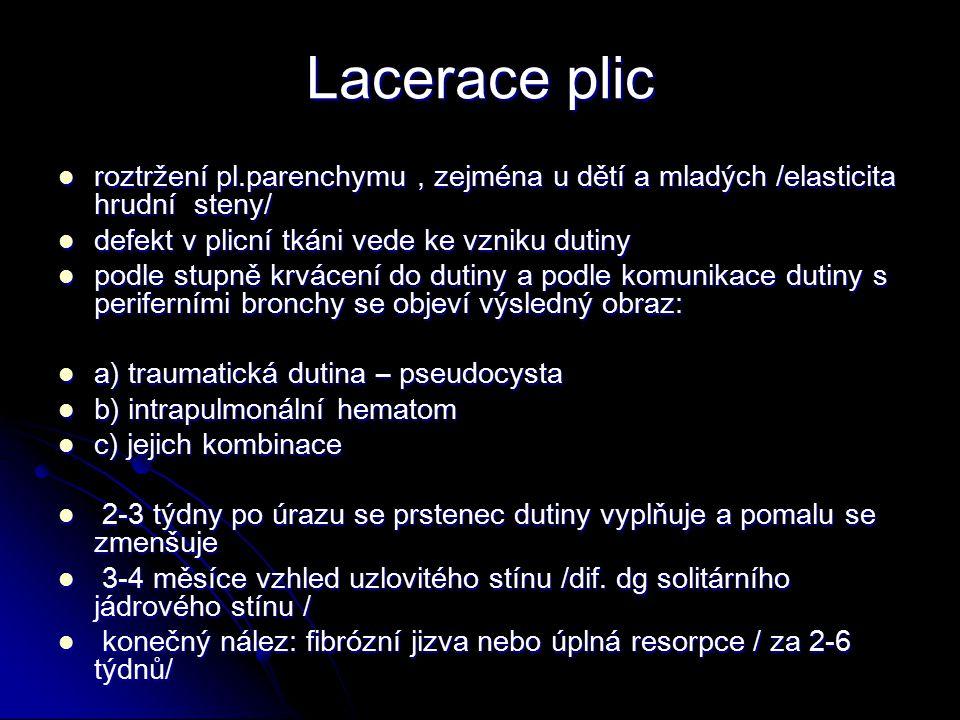 Lacerace plic roztržení pl.parenchymu, zejména u dětí a mladých /elasticita hrudní steny/ roztržení pl.parenchymu, zejména u dětí a mladých /elasticita hrudní steny/ defekt v plicní tkáni vede ke vzniku dutiny defekt v plicní tkáni vede ke vzniku dutiny podle stupně krvácení do dutiny a podle komunikace dutiny s periferními bronchy se objeví výsledný obraz: podle stupně krvácení do dutiny a podle komunikace dutiny s periferními bronchy se objeví výsledný obraz: a) traumatická dutina – pseudocysta a) traumatická dutina – pseudocysta b) intrapulmonální hematom b) intrapulmonální hematom c) jejich kombinace c) jejich kombinace 2-3 týdny po úrazu se prstenec dutiny vyplňuje a pomalu se zmenšuje 2-3 týdny po úrazu se prstenec dutiny vyplňuje a pomalu se zmenšuje 3-4 měsíce vzhled uzlovitého stínu /dif.