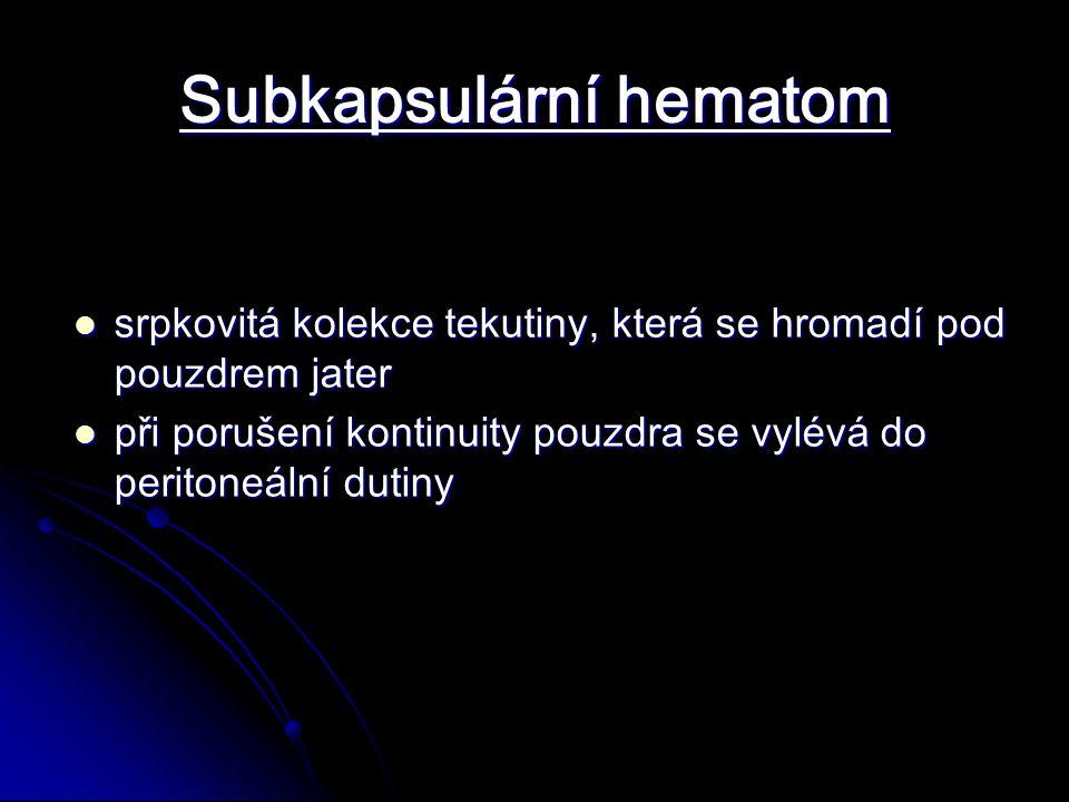 Subkapsulární hematom srpkovitá kolekce tekutiny, která se hromadí pod pouzdrem jater srpkovitá kolekce tekutiny, která se hromadí pod pouzdrem jater při porušení kontinuity pouzdra se vylévá do peritoneální dutiny při porušení kontinuity pouzdra se vylévá do peritoneální dutiny