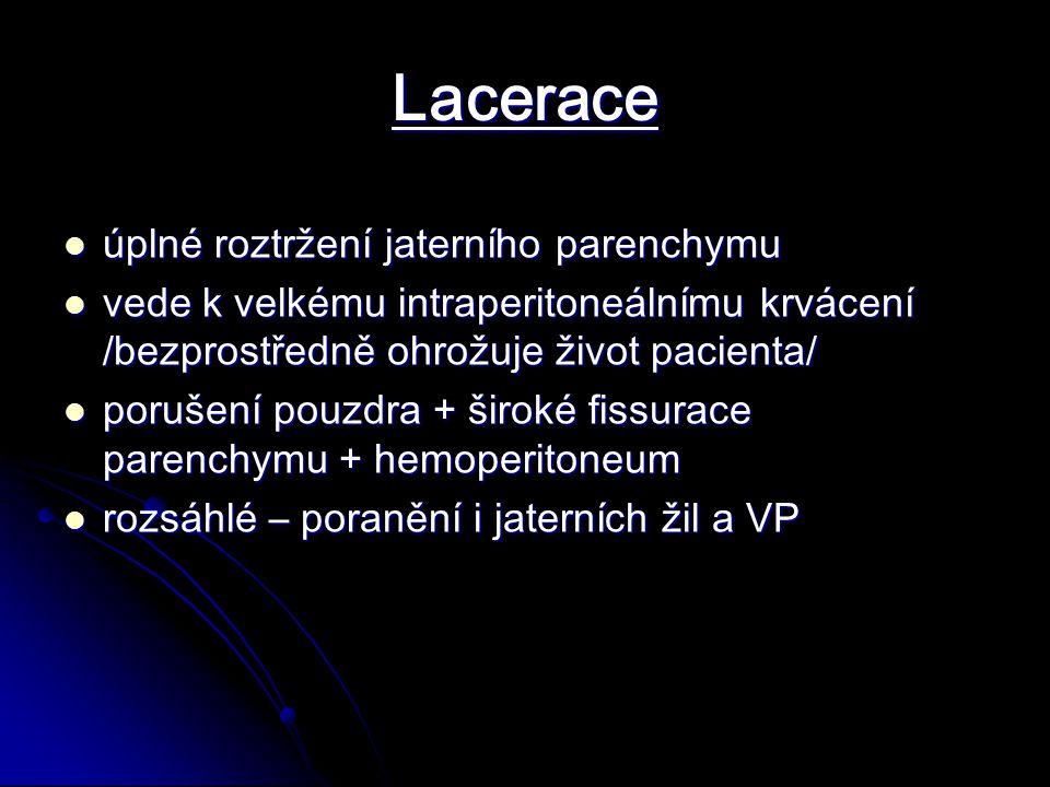 Lacerace úplné roztržení jaterního parenchymu úplné roztržení jaterního parenchymu vede k velkému intraperitoneálnímu krvácení /bezprostředně ohrožuje život pacienta/ vede k velkému intraperitoneálnímu krvácení /bezprostředně ohrožuje život pacienta/ porušení pouzdra + široké fissurace parenchymu + hemoperitoneum porušení pouzdra + široké fissurace parenchymu + hemoperitoneum rozsáhlé – poranění i jaterních žil a VP rozsáhlé – poranění i jaterních žil a VP