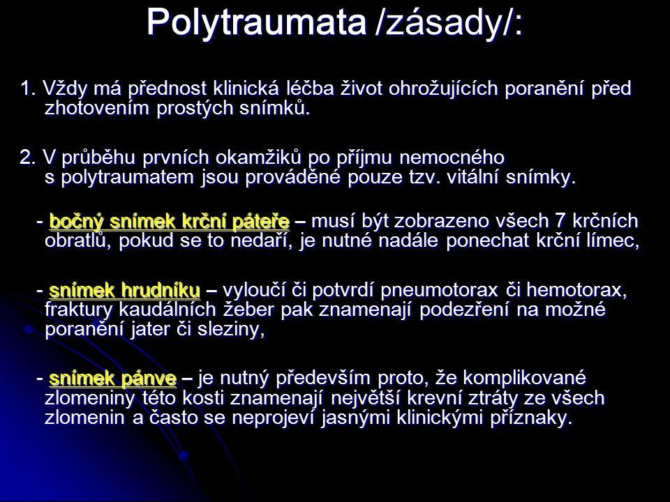 Polytraumata /zásady/: 1.