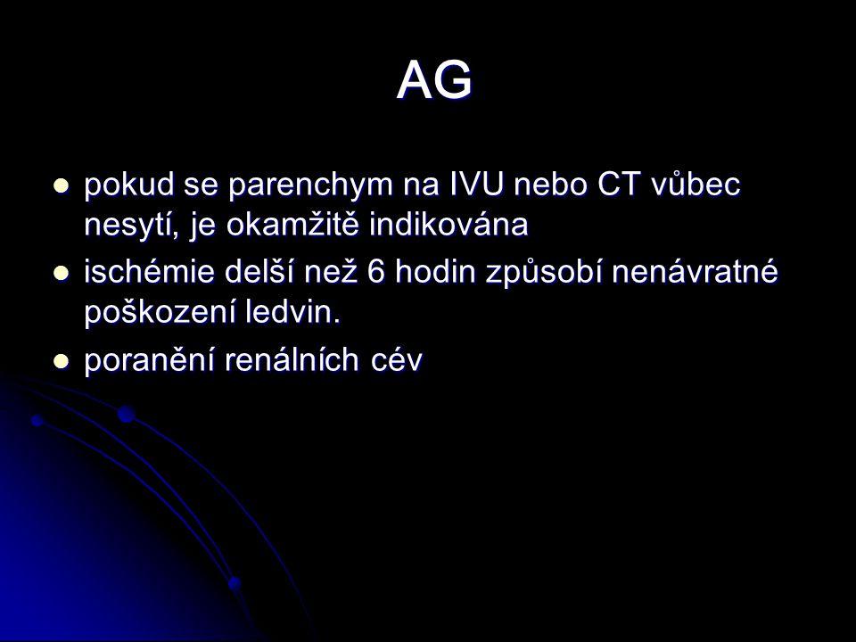 AG AG pokud se parenchym na IVU nebo CT vůbec nesytí, je okamžitě indikována pokud se parenchym na IVU nebo CT vůbec nesytí, je okamžitě indikována ischémie delší než 6 hodin způsobí nenávratné poškození ledvin.