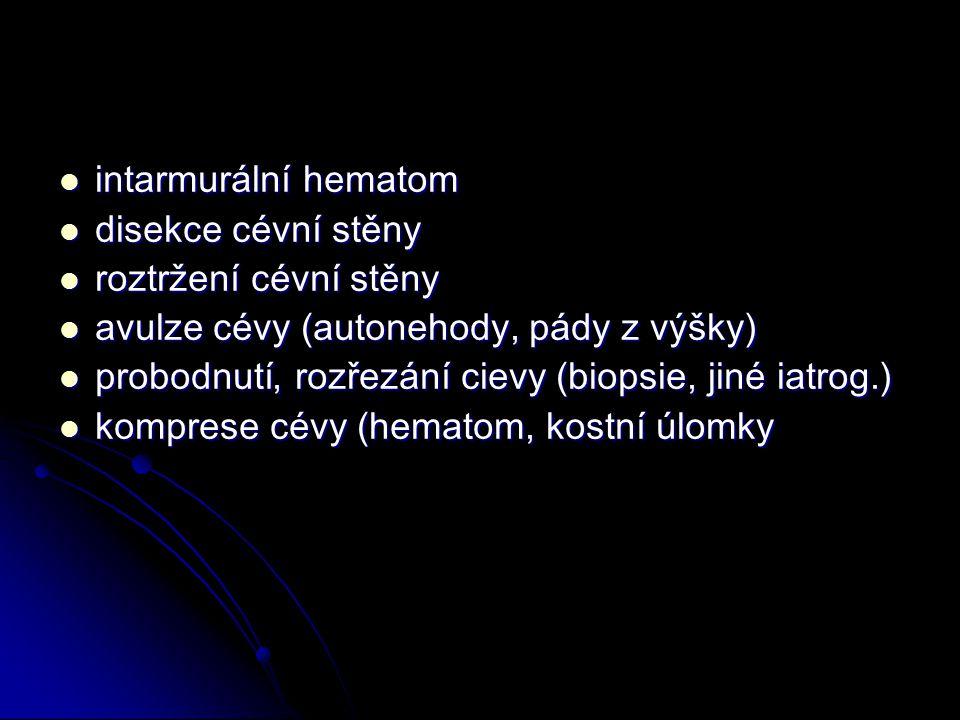 intarmurální hematom intarmurální hematom disekce cévní stěny disekce cévní stěny roztržení cévní stěny roztržení cévní stěny avulze cévy (autonehody, pády z výšky) avulze cévy (autonehody, pády z výšky) probodnutí, rozřezání cievy (biopsie, jiné iatrog.) probodnutí, rozřezání cievy (biopsie, jiné iatrog.) komprese cévy (hematom, kostní úlomky komprese cévy (hematom, kostní úlomky