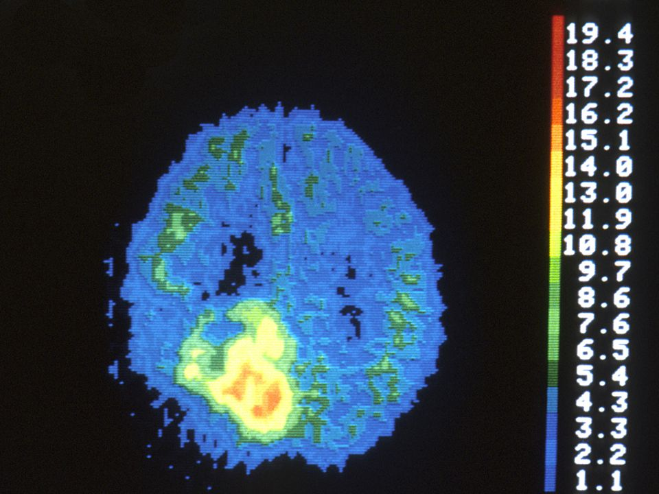 Vychytávání kyslíku Mozek: 20% spotřeby O2 v těle Orgán vůbec nejcitlivější k hypoxii ▫5 min zástavy oběhu může způsobit nevratné změny ▫závislost na teplotě Klinické použití: ▫oxymetrie v jugulárním bulbu ▫tkáňové pO2
