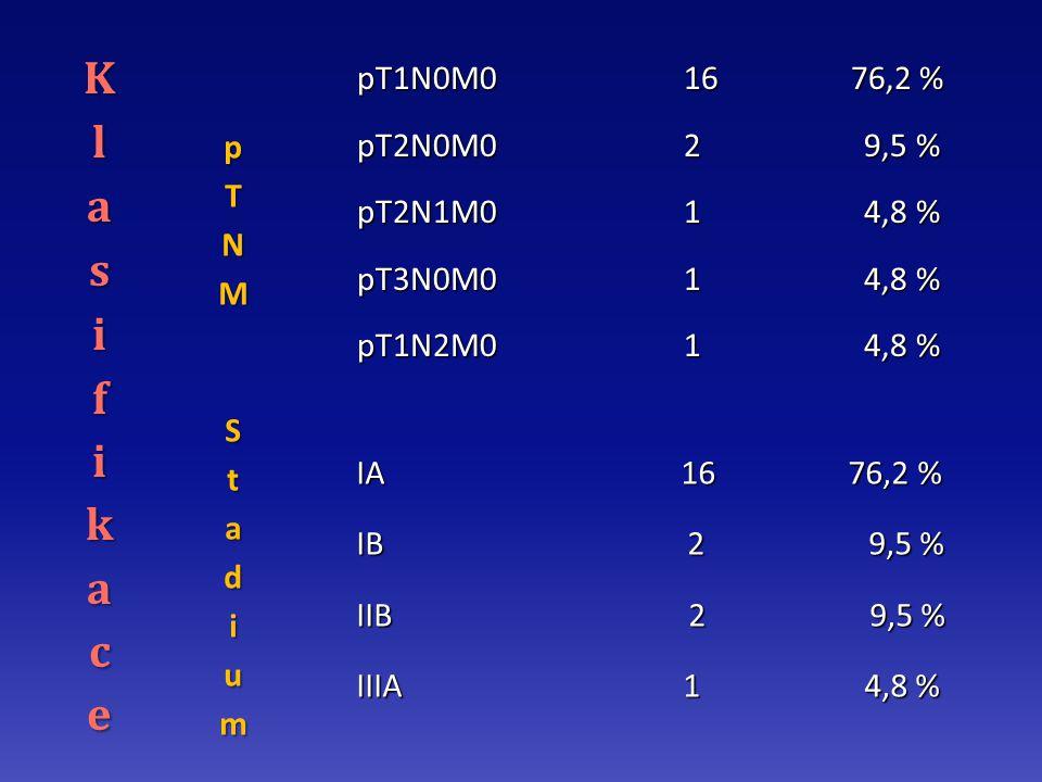 pT1N0M0 16 76,2 % pT1N0M0 16 76,2 % pT2N0M0 2 9,5 % pT2N0M0 2 9,5 % pT2N1M0 1 4,8 % pT2N1M0 1 4,8 % pT3N0M0 1 4,8 % pT3N0M0 1 4,8 % pT1N2M0 1 4,8 % pT1N2M0 1 4,8 % IA 16 76,2 % IA 16 76,2 % IB 2 9,5 % IB 2 9,5 % IIB 2 9,5 % IIB 2 9,5 % IIIA 1 4,8 % IIIA 1 4,8 %