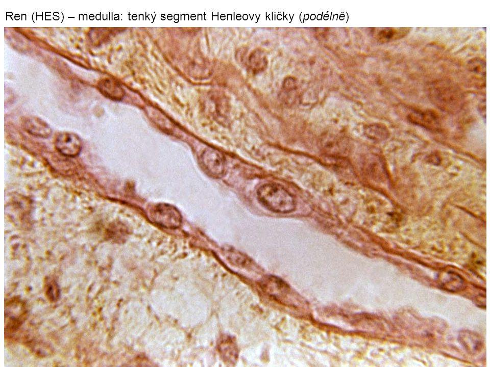 24 Ren (HES) – medulla: tenký segment Henleovy kličky (podélně)