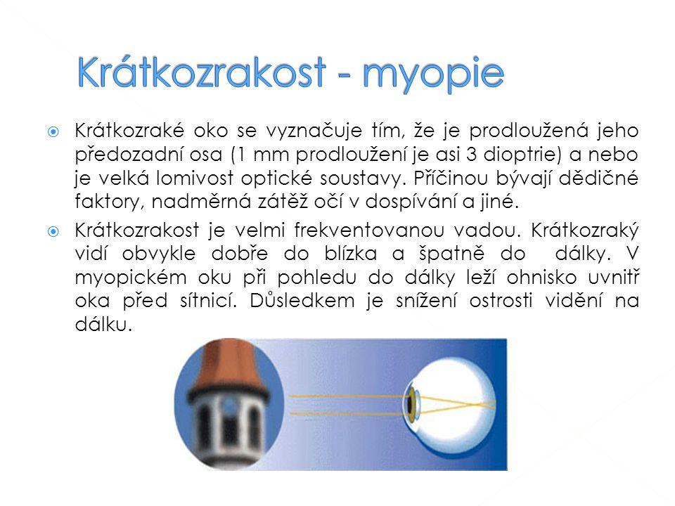  Krátkozraké oko se vyznačuje tím, že je prodloužená jeho předozadní osa (1 mm prodloužení je asi 3 dioptrie) a nebo je velká lomivost optické soustavy.