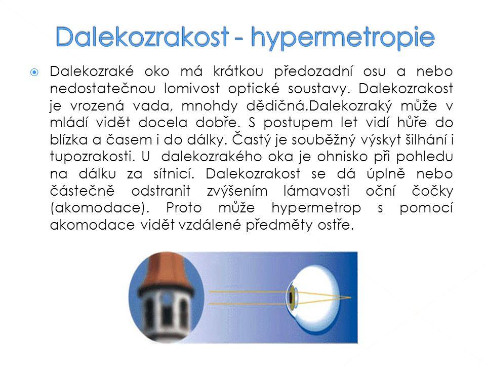  Dalekozraké oko má krátkou předozadní osu a nebo nedostatečnou lomivost optické soustavy. Dalekozrakost je vrozená vada, mnohdy dědičná.Dalekozraký